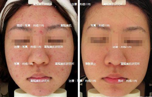 ○脂症 赤ら顔 にきびモザイク.jpg