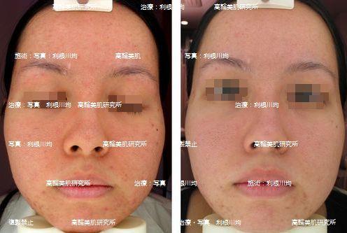 ○赤ら顔 治療 脂症 写真.jpg