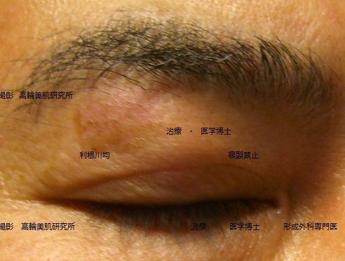 しみのレーザー治療12日後写真画像.jpg