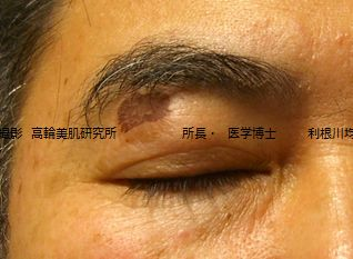 しみのレーザー治療4日後写真.jpg