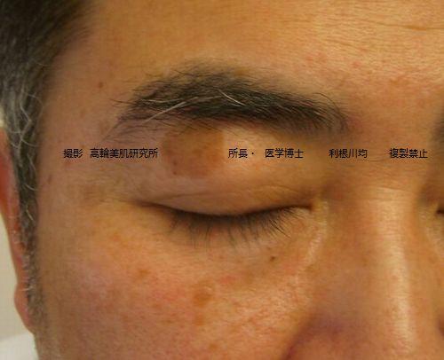 しみのレーザー治療前 写真画像.jpg